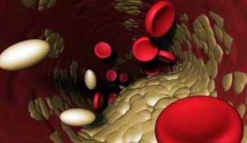 Холестерин общий (холестерол общий)