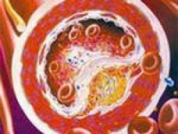 Возрастной холестерин