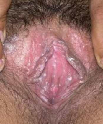 Молочница симптомы