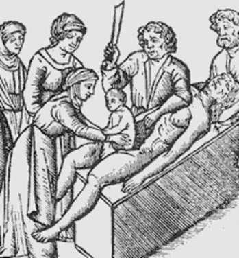 Кесарево сечение — за и против